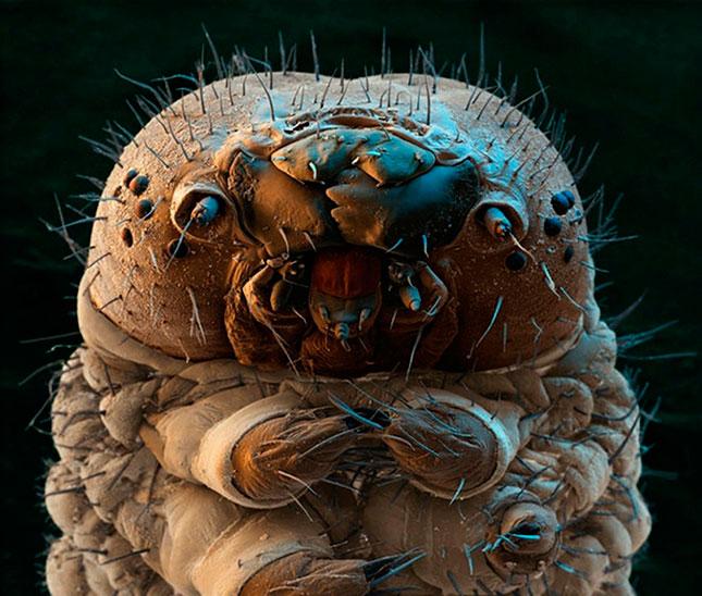 Medicina de parasitas em um corpo humano em uma farmácia