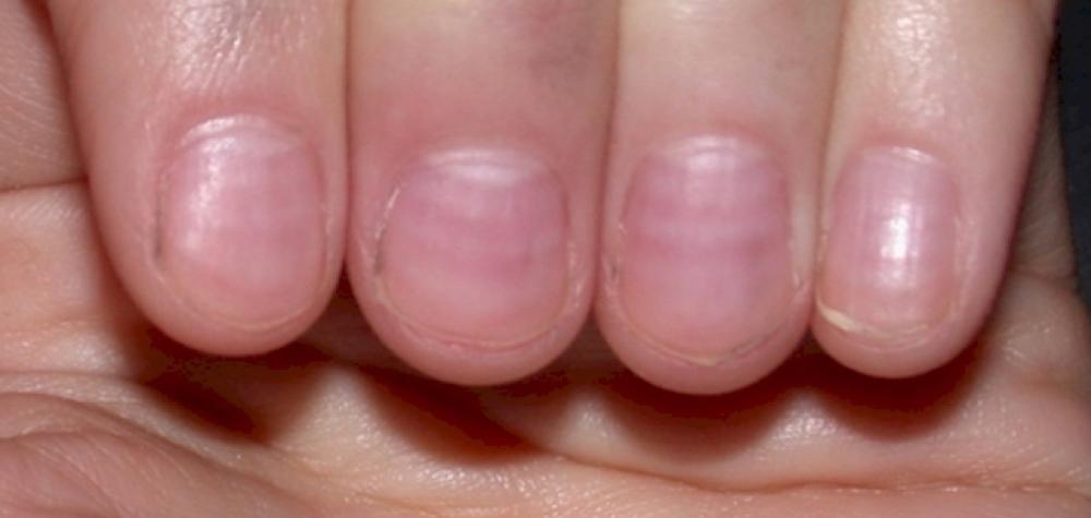 Tem Na Web - 10 Sinais de alerta que suas unhas podem estar mostrando agora mesmo
