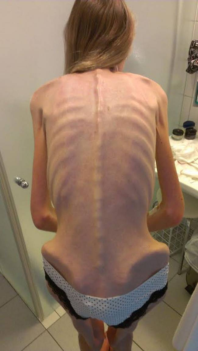 anorexia-cruel-3