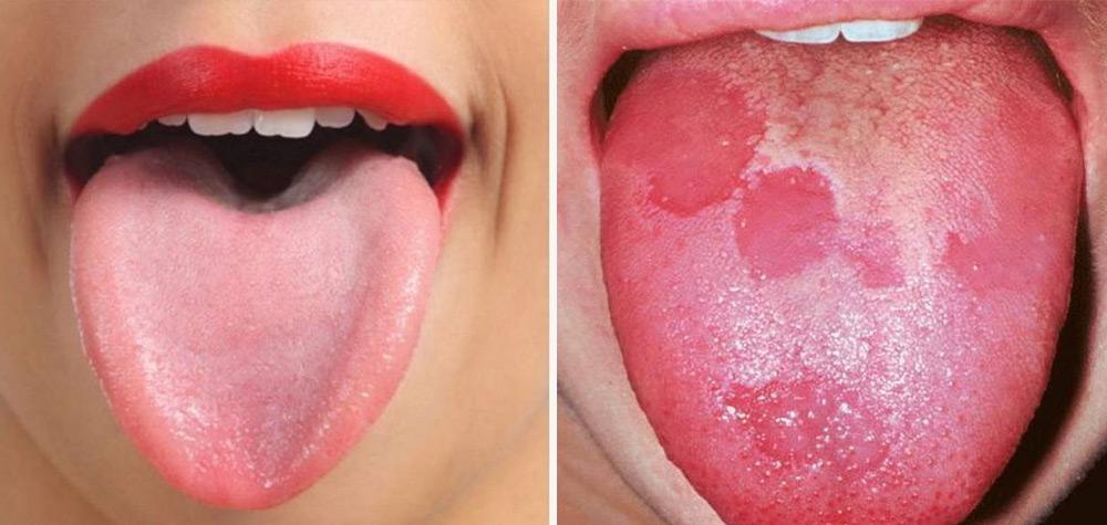 Tem Na Web - 8 Sinais que sua língua dá e que podem dizer bastante sobre a sua saúde