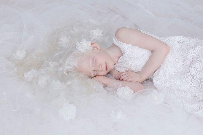 beleza-dos-albinos-1