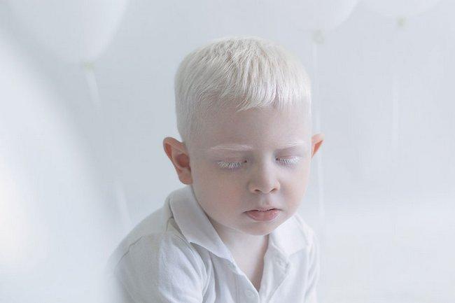 beleza-dos-albinos-10