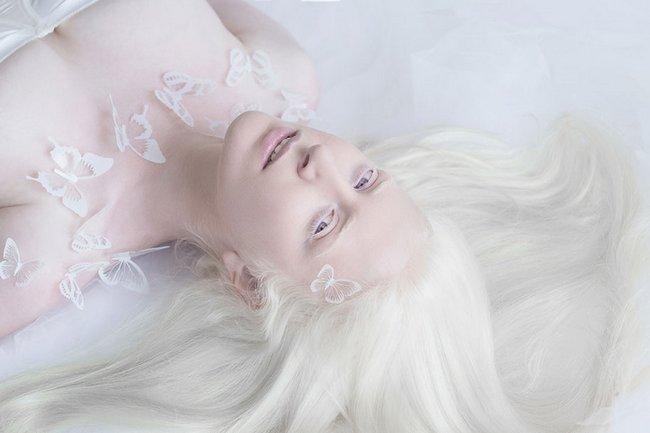 beleza-dos-albinos-3