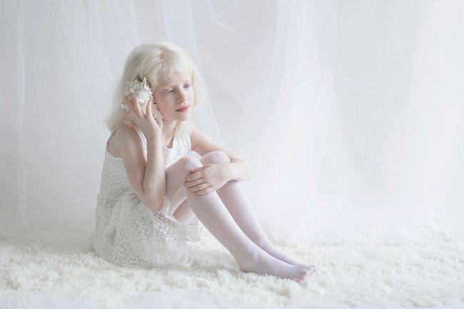beleza-dos-albinos-5