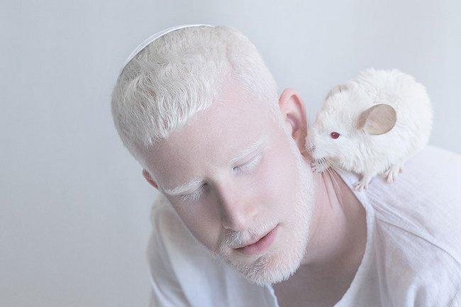 beleza-dos-albinos-6