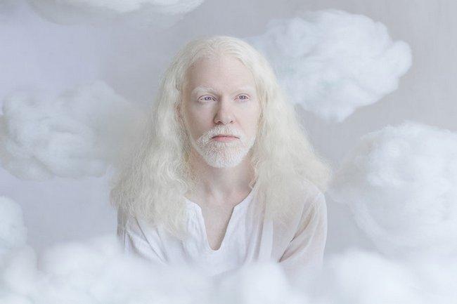 beleza-dos-albinos-7