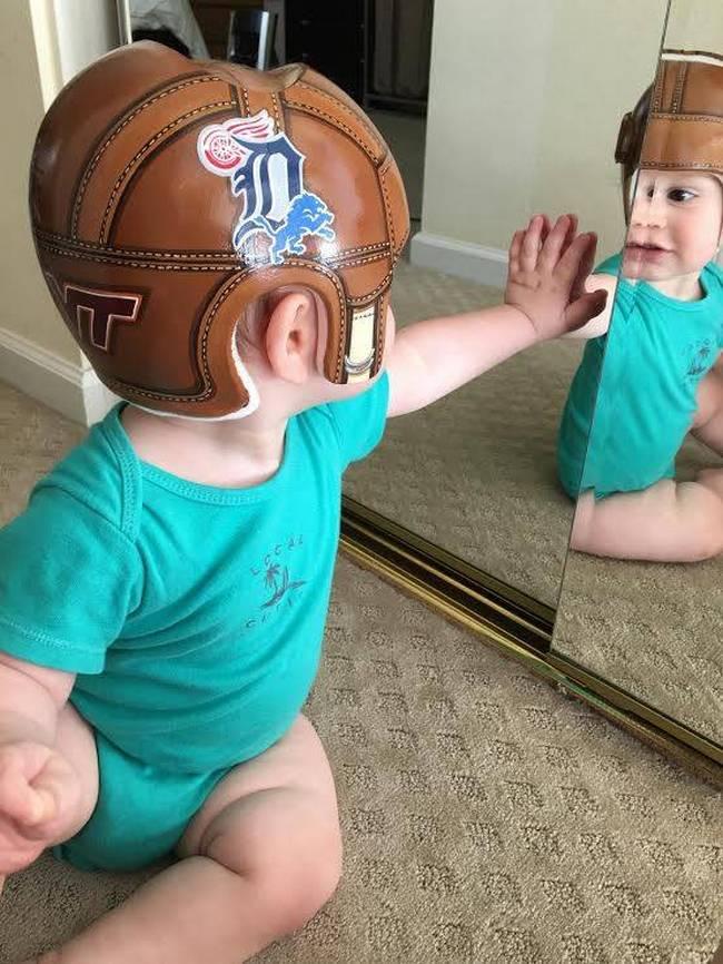 capacete-craniano-5