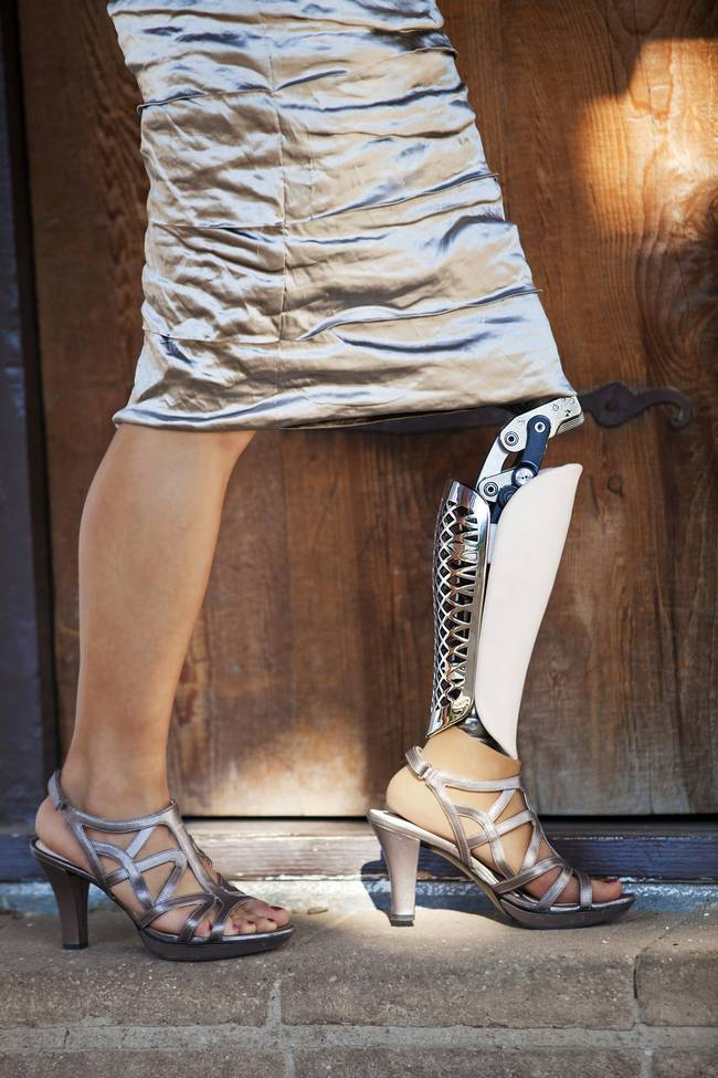 perna-protese-3