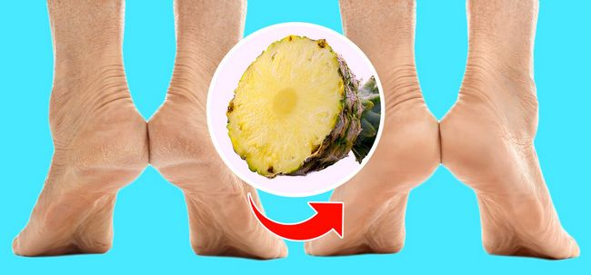 How to Keep Your Feet Healthier